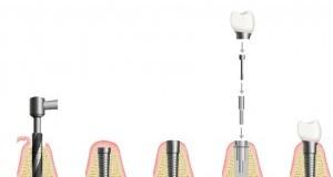 Das Zahn Implantat Frankfurt in unserer Zahnarztpraxis. Eine Abfolge von Bildern, die schematisch die Insertion eines Zahn Implantats zeigen.